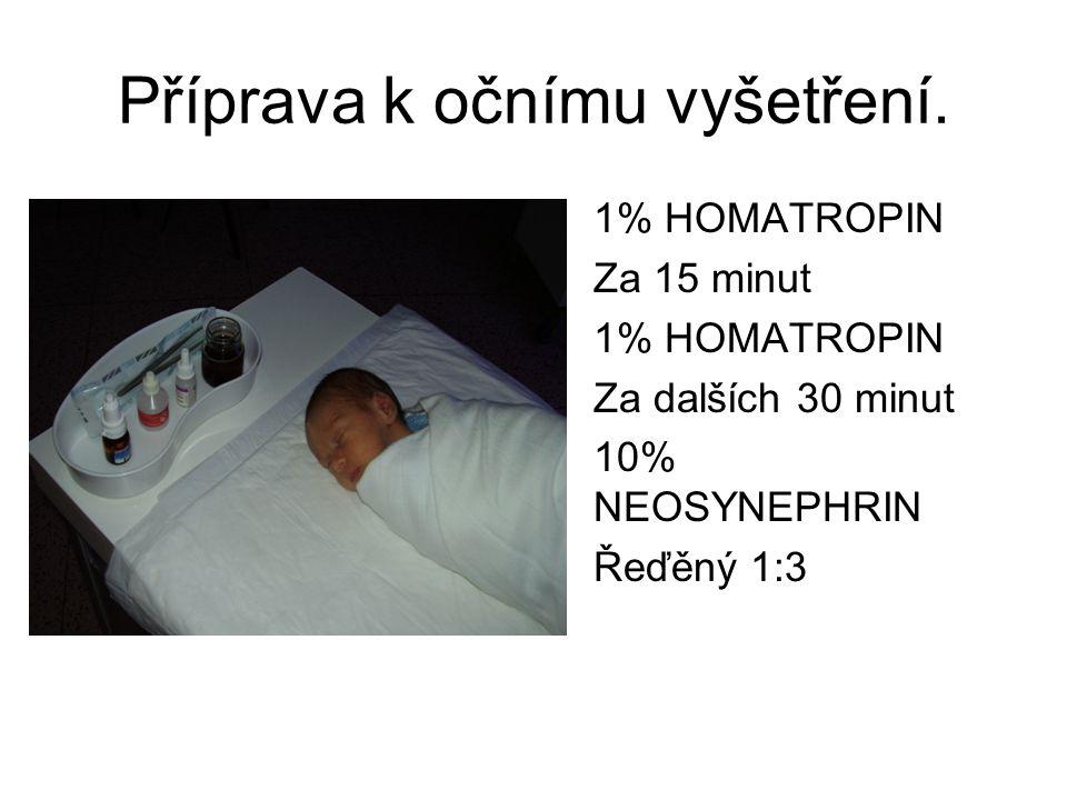 Příprava k očnímu vyšetření. 1% HOMATROPIN Za 15 minut 1% HOMATROPIN Za dalších 30 minut 10% NEOSYNEPHRIN Řeďěný 1:3