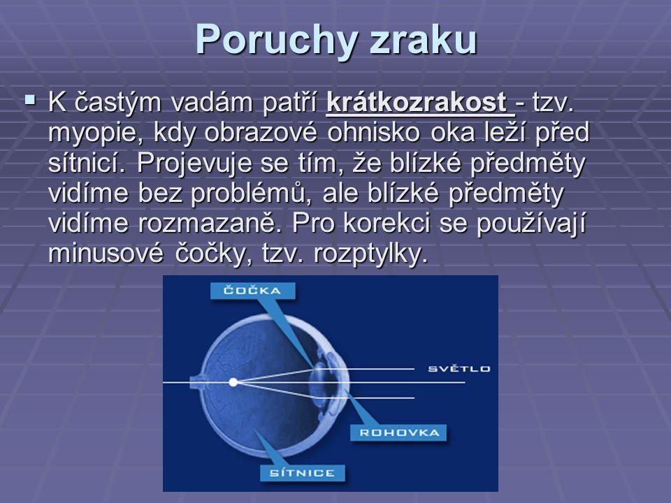 Poruchy zraku  K častým vadám patří krátkozrakost - tzv.
