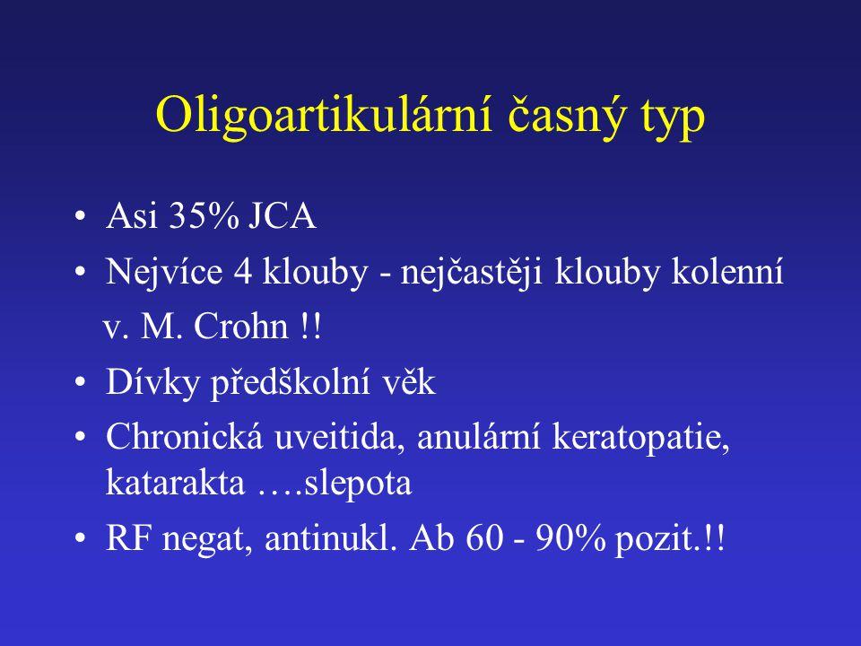Oligoartikulární časný typ Asi 35% JCA Nejvíce 4 klouby - nejčastěji klouby kolenní v. M. Crohn !! Dívky předškolní věk Chronická uveitida, anulární k