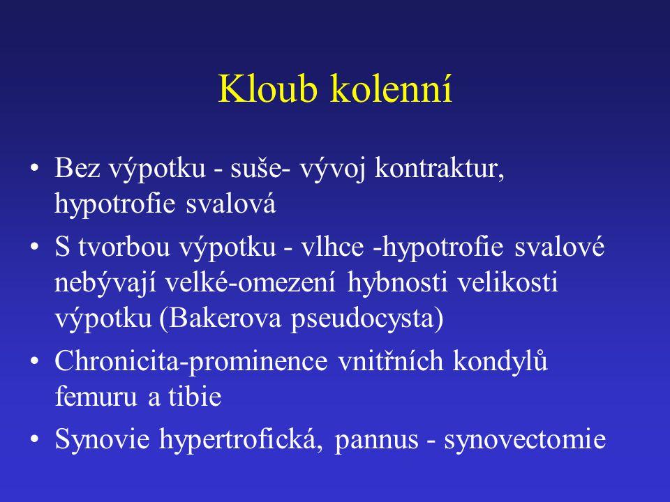 Kloub kolenní Bez výpotku - suše- vývoj kontraktur, hypotrofie svalová S tvorbou výpotku - vlhce -hypotrofie svalové nebývají velké-omezení hybnosti velikosti výpotku (Bakerova pseudocysta) Chronicita-prominence vnitřních kondylů femuru a tibie Synovie hypertrofická, pannus - synovectomie