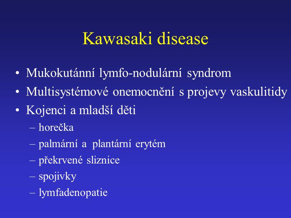 Kawasaki disease Mukokutánní lymfo-nodulární syndrom Multisystémové onemocnění s projevy vaskulitidy Kojenci a mladší děti –horečka –palmární a plantární erytém –překrvené sliznice –spojivky –lymfadenopatie
