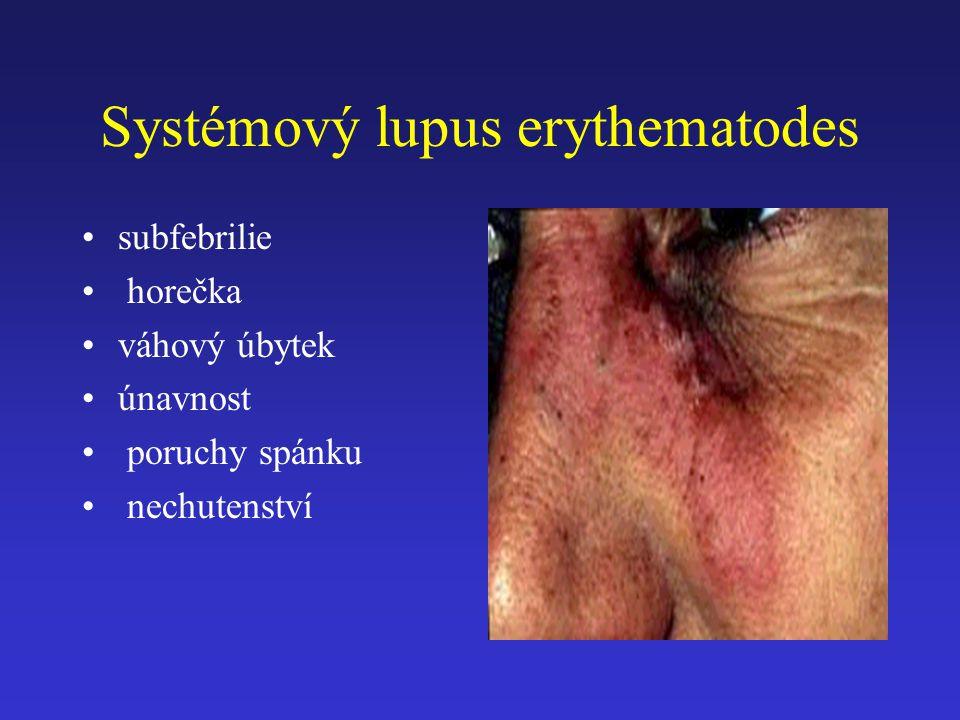 Systémový lupus erythematodes subfebrilie horečka váhový úbytek únavnost poruchy spánku nechutenství