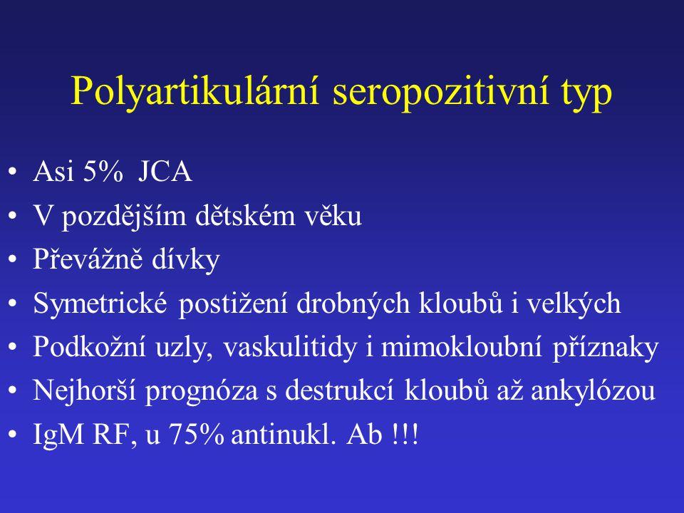 Polyartikulární seropozitivní typ Asi 5% JCA V pozdějším dětském věku Převážně dívky Symetrické postižení drobných kloubů i velkých Podkožní uzly, vas