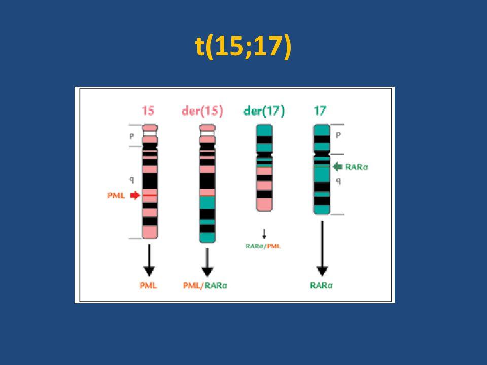 APL Patognomickou genetickou změnou u APL je přítomnost balancované reciproční translokace t(15;17) Tato translokace způsobuje fúzi tzv.