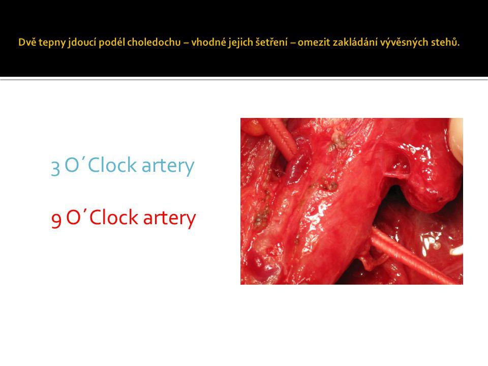 3 O´Clock artery 9 O´Clock artery