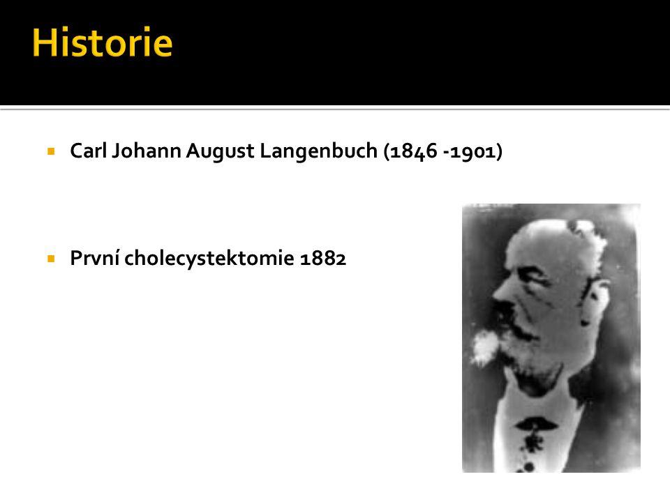  Carl Johann August Langenbuch (1846 -1901)  První cholecystektomie 1882