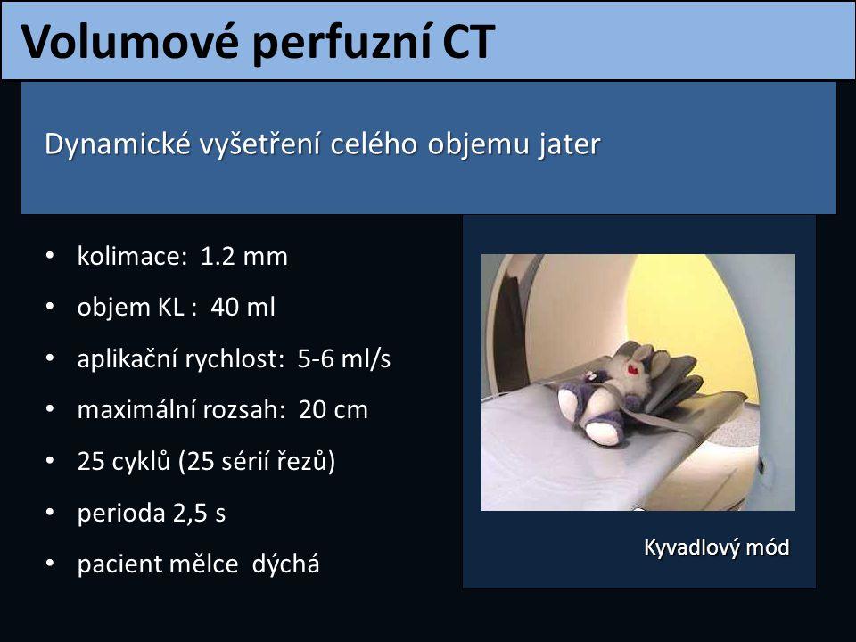 Volumové perfuzní CT Dynamické vyšetření celého objemu jater Dynamické vyšetření celého objemu jater kolimace: 1.2 mm objem KL : 40 ml aplikační rychl