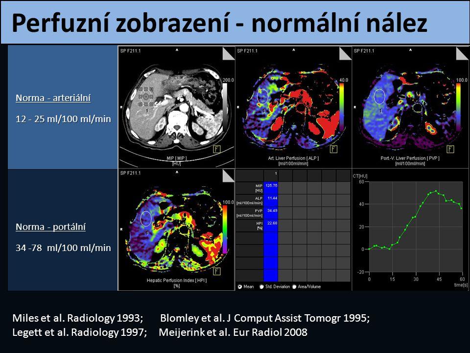Perfuzní zobrazení - normální nález Norma - arteriální 12 - 25 ml/100 ml/min Norma - portální 34 -78 ml/100 ml/min Miles et al. Radiology 1993; Blomle