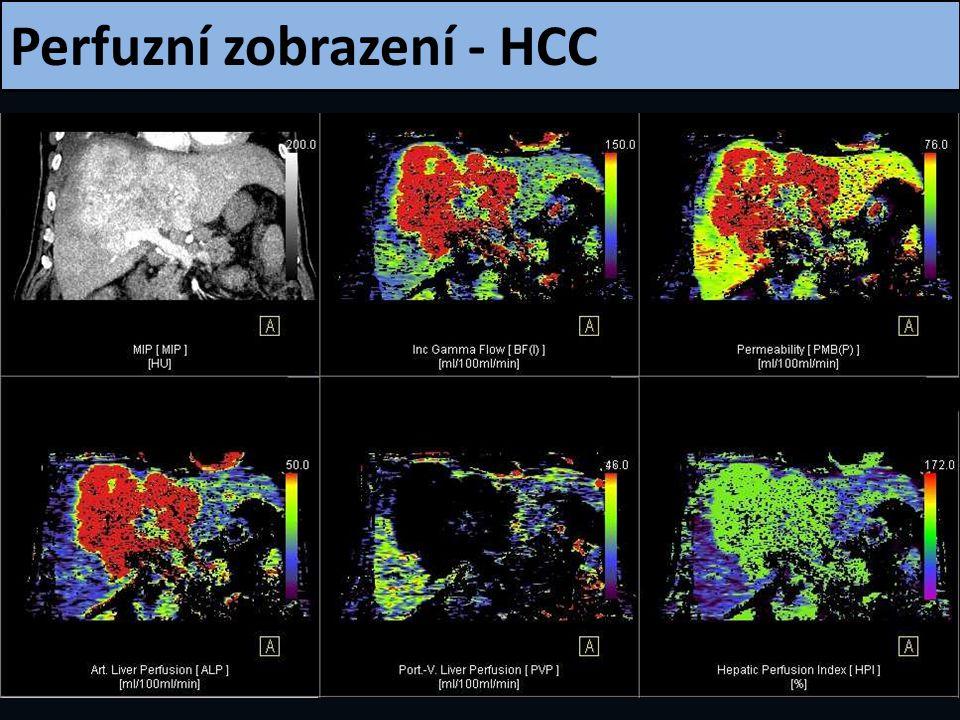 Perfuzní zobrazení - HCC