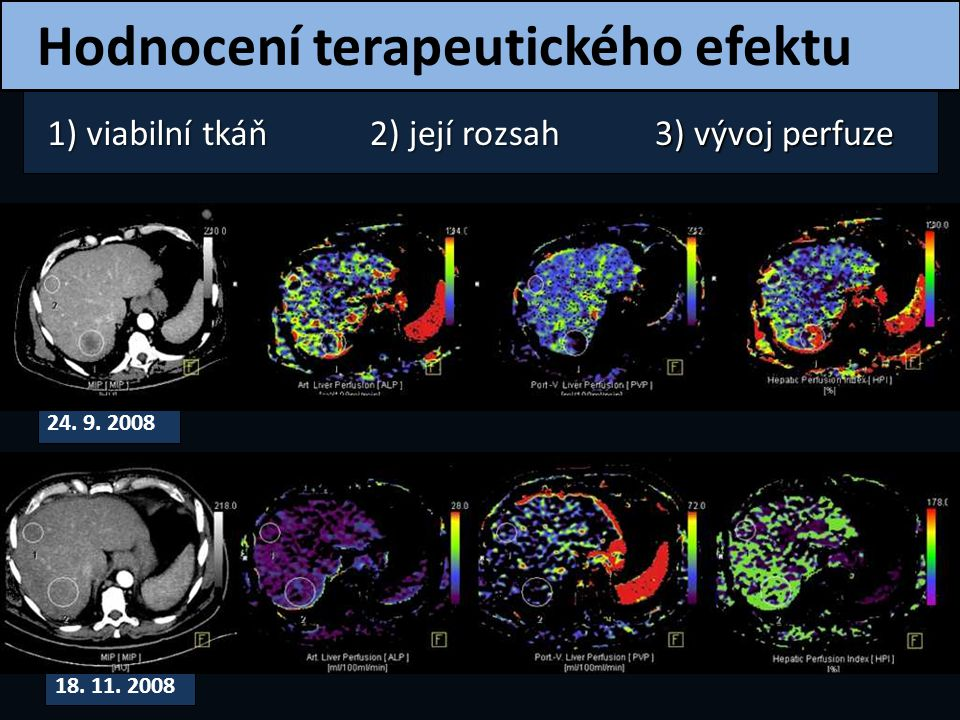 Hodnocení terapeutického efektu 1) viabilní tkáň 2) její rozsah 3) vývoj perfuze 24. 9. 2008 18. 11. 2008