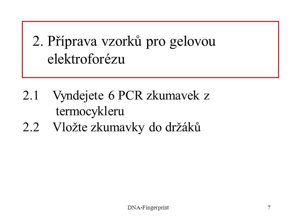 DNA-Fingerprint18 6. Vyhodnocení