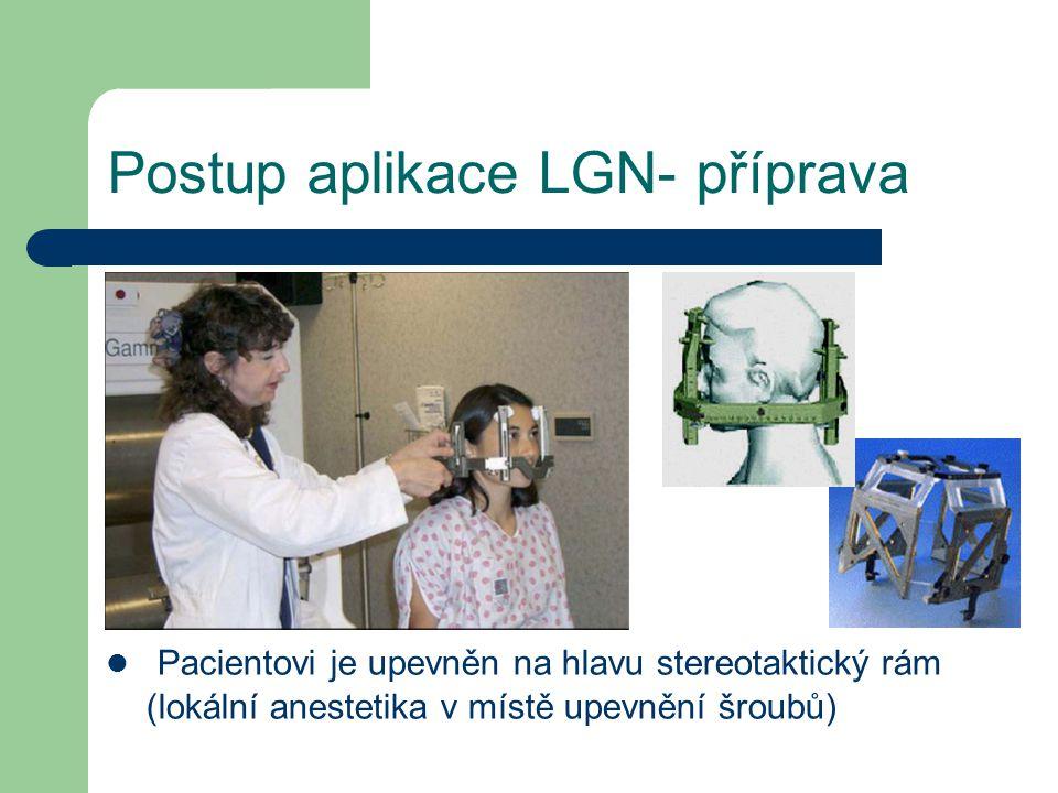 Postup aplikace LGN- příprava Pacientovi je upevněn na hlavu stereotaktický rám (lokální anestetika v místě upevnění šroubů)