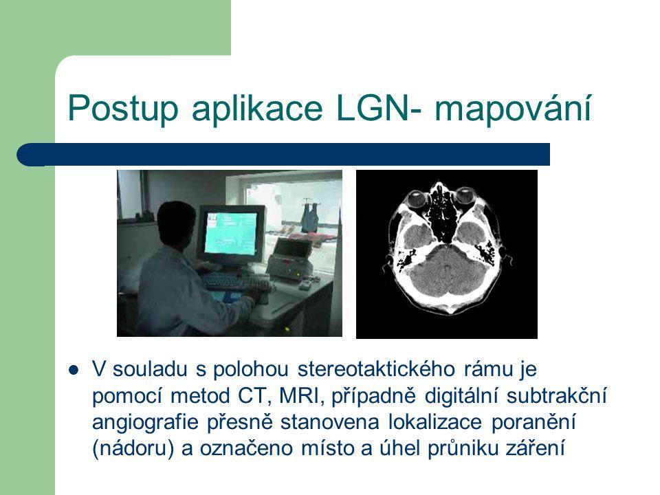 Postup aplikace LGN- mapování V souladu s polohou stereotaktického rámu je pomocí metod CT, MRI, případně digitální subtrakční angiografie přesně stanovena lokalizace poranění (nádoru) a označeno místo a úhel průniku záření