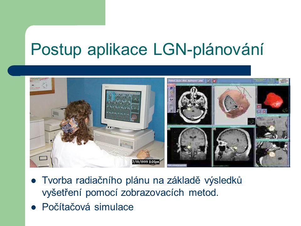 Postup aplikace LGN-plánování Tvorba radiačního plánu na základě výsledků vyšetření pomocí zobrazovacích metod.