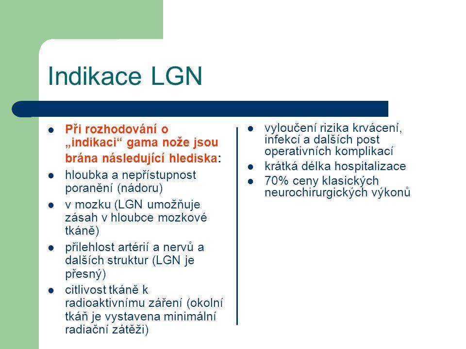 """Indikace LGN Při rozhodování o """"indikaci gama nože jsou brána následující hlediska: hloubka a nepřístupnost poranění (nádoru) v mozku (LGN umožňuje zásah v hloubce mozkové tkáně) přilehlost artérií a nervů a dalších struktur (LGN je přesný) citlivost tkáně k radioaktivnímu záření (okolní tkáň je vystavena minimální radiační zátěži) vyloučení rizika krvácení, infekcí a dalších post operativních komplikací krátká délka hospitalizace 70% ceny klasických neurochirurgických výkonů"""