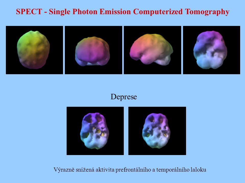 SPECT - Single Photon Emission Computerized Tomography Deprese Výrazně snížená aktivita prefrontálního a temporálního laloku