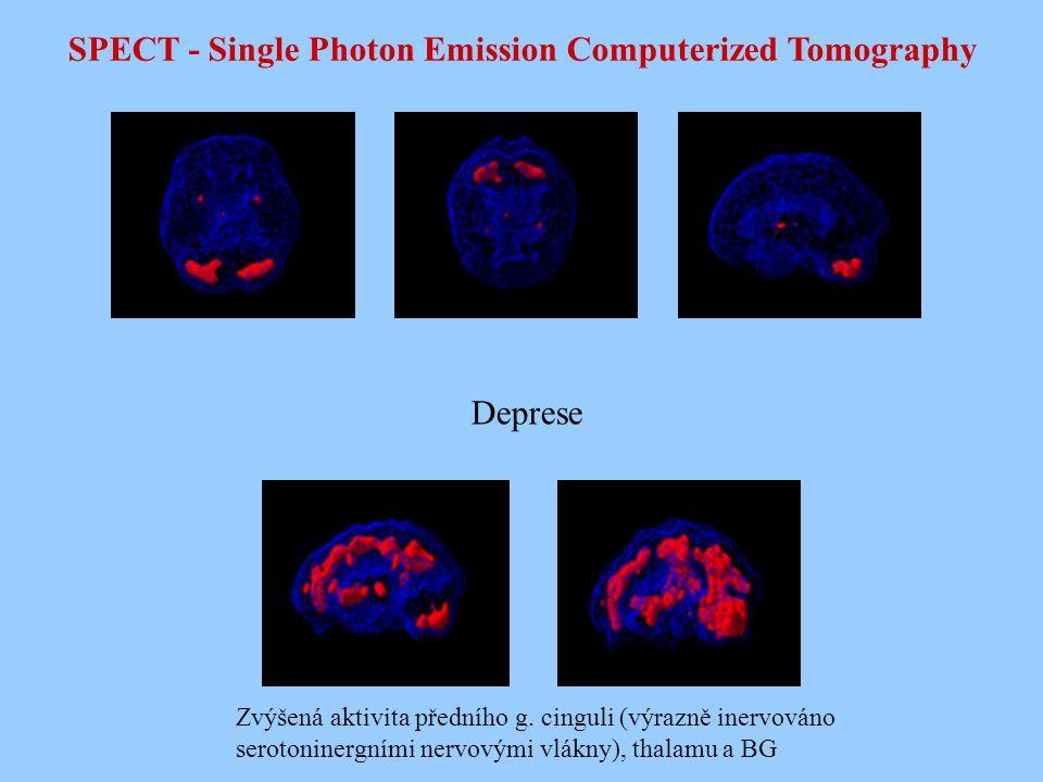 SPECT - Single Photon Emission Computerized Tomography Deprese Zvýšená aktivita předního g. cinguli (výrazně inervováno serotoninergními nervovými vlá