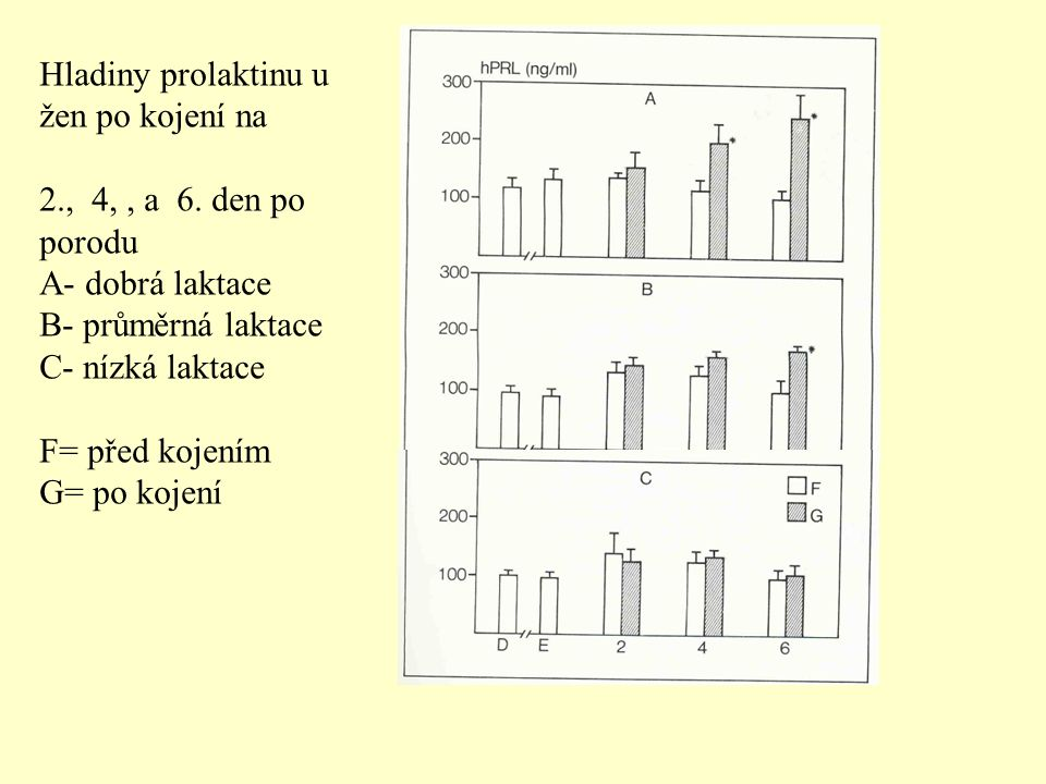 Hladiny prolaktinu u žen po kojení na 2., 4,, a 6. den po porodu A- dobrá laktace B- průměrná laktace C- nízká laktace F= před kojením G= po kojení