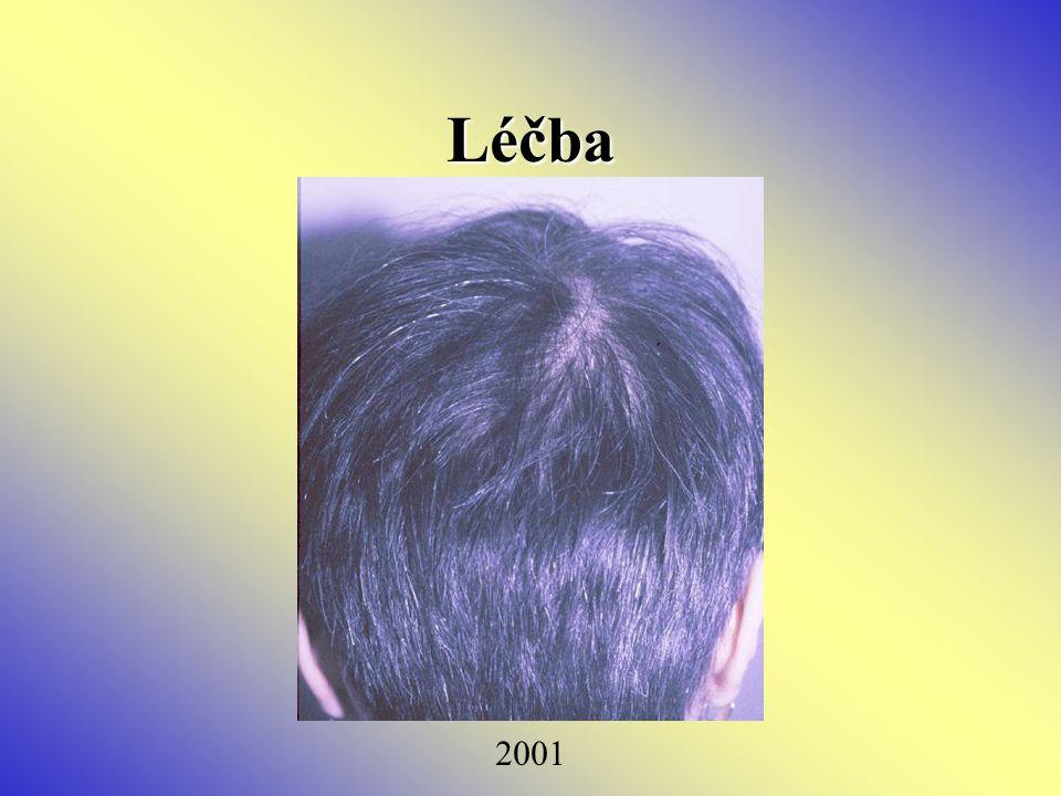 Léčba 2001
