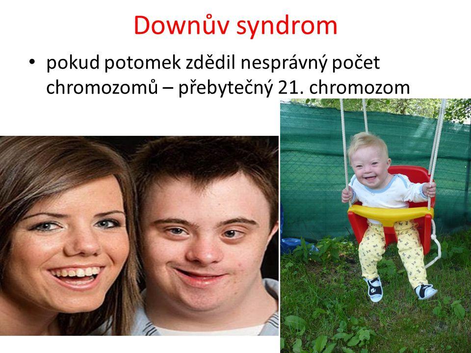 Downův syndrom pokud potomek zdědil nesprávný počet chromozomů – přebytečný 21. chromozom