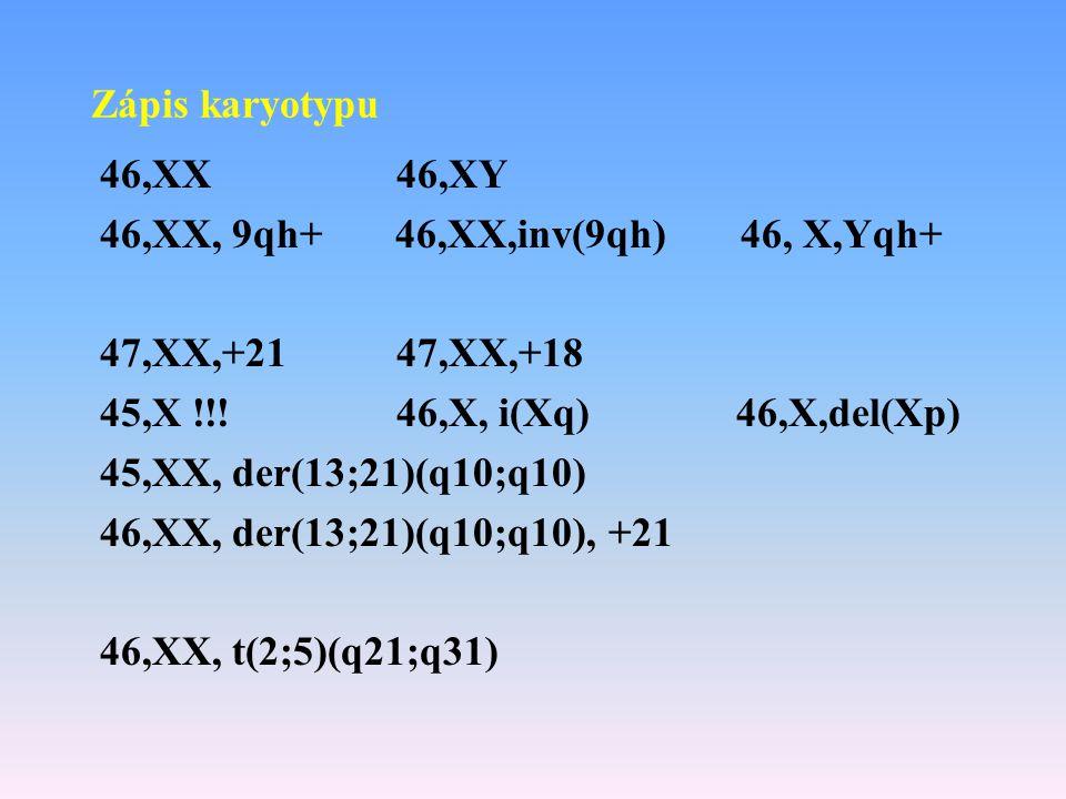 Zápis karyotypu 46,XX 46,XY 46,XX, 9qh+ 46,XX,inv(9qh) 46, X,Yqh+ 47,XX,+21 47,XX,+18 45,X !!! 46,X, i(Xq) 46,X,del(Xp) 45,XX, der(13;21)(q10;q10) 46,