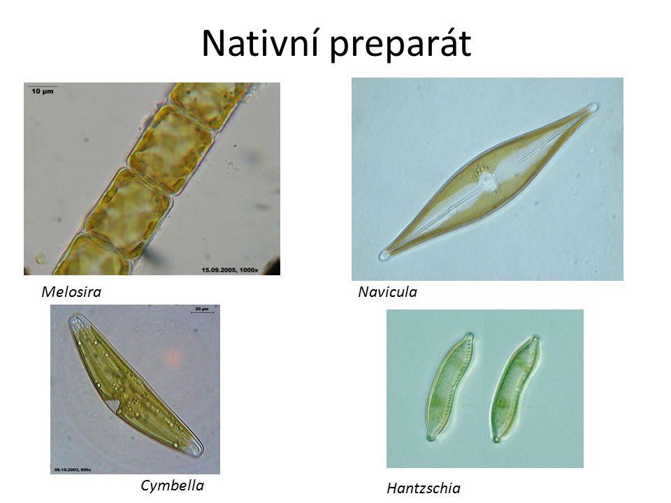 Nativní preparát NaviculaMelosira Cymbella Hantzschia