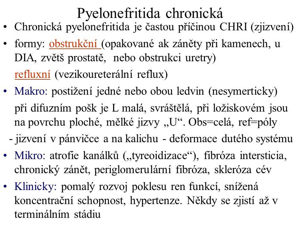 Pyelonefritida chronická Chronická pyelonefritida je častou příčinou CHRI (zjizvení) formy: obstrukční (opakované ak záněty při kamenech, u DIA, zvětš
