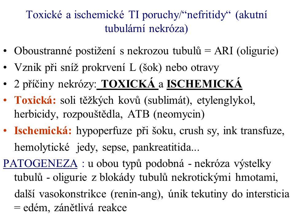 """Toxické a ischemické TI poruchy/""""nefritidy"""" (akutní tubulární nekróza) Oboustranné postižení s nekrozou tubulů = ARI (oligurie) Vznik při sníž prokrve"""