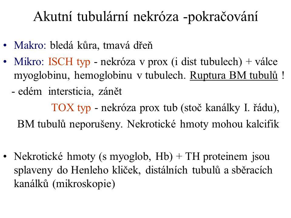 Akutní tubulární nekróza -pokračování Makro: bledá kůra, tmavá dřeň Mikro: ISCH typ - nekróza v prox (i dist tubulech) + válce myoglobinu, hemoglobinu
