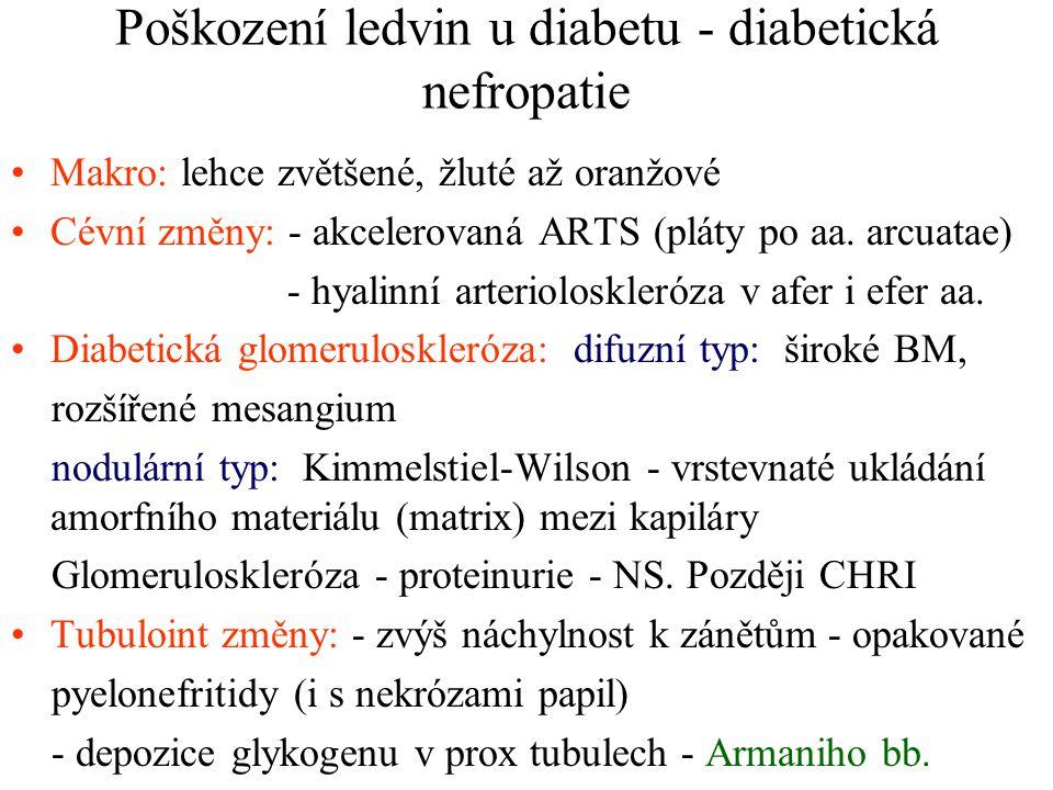 Poškození ledvin u diabetu - diabetická nefropatie Makro: lehce zvětšené, žluté až oranžové Cévní změny: - akcelerovaná ARTS (pláty po aa. arcuatae) -