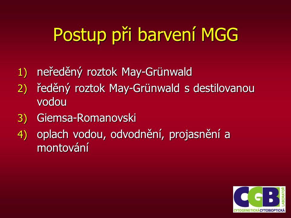 Postup při barvení MGG 1) neředěný roztok May-Grünwald 2) ředěný roztok May-Grünwald s destilovanou vodou 3) Giemsa-Romanovski 4) oplach vodou, odvodn