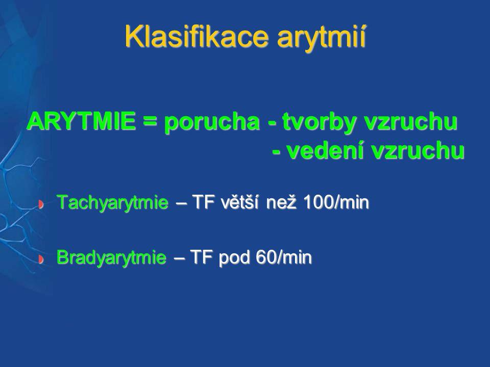 Ventrikulární tachykardie Vznikají ve svalovině komor nebo distálně od Hissova svazku EKG kritéria:  Komorové extrasystoly – KES  Urychlený idioventrikulární rytmus  Komorové tachykardie  Flutter / Fibrilace komor