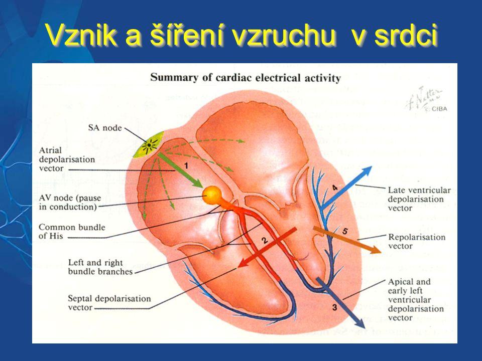 Supraventrikulární tachykardie 1.nezávislé na AV uzlu – fibrilace síní Terapie: 1.