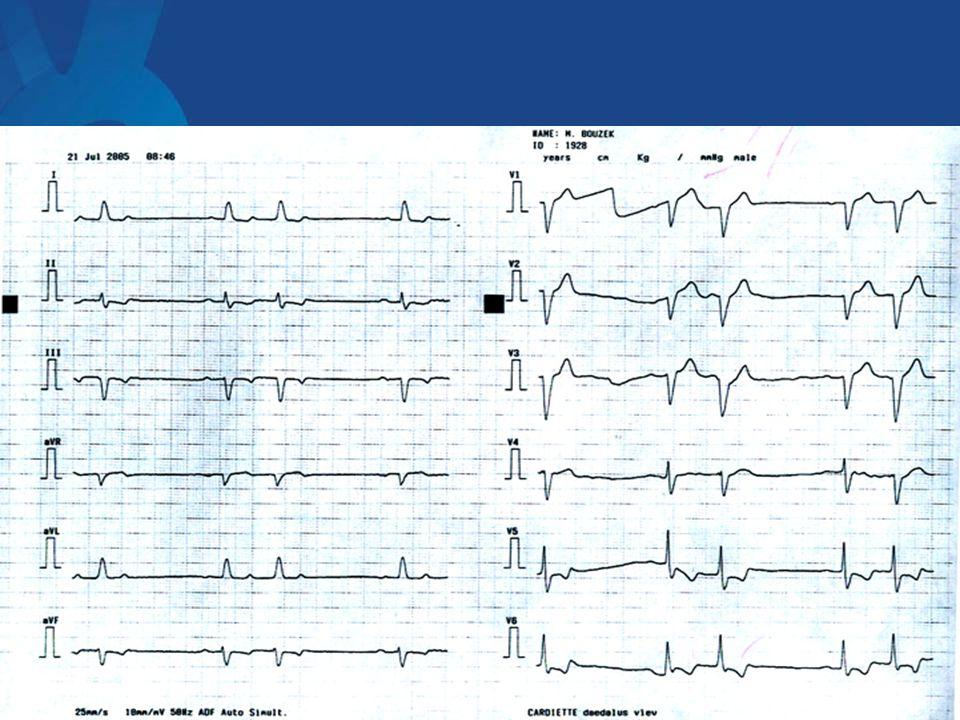 Ventrikulární tachykardie Klasifikace z klinického hlediska:  VT idiopatická – dobrá prognóza, léčba jen u symptomů (beta-blokátory, blokátory Ca kanálů, aj)  VT při organickém poškození srdce – častější, ICHS, kardiomyopatie aj.