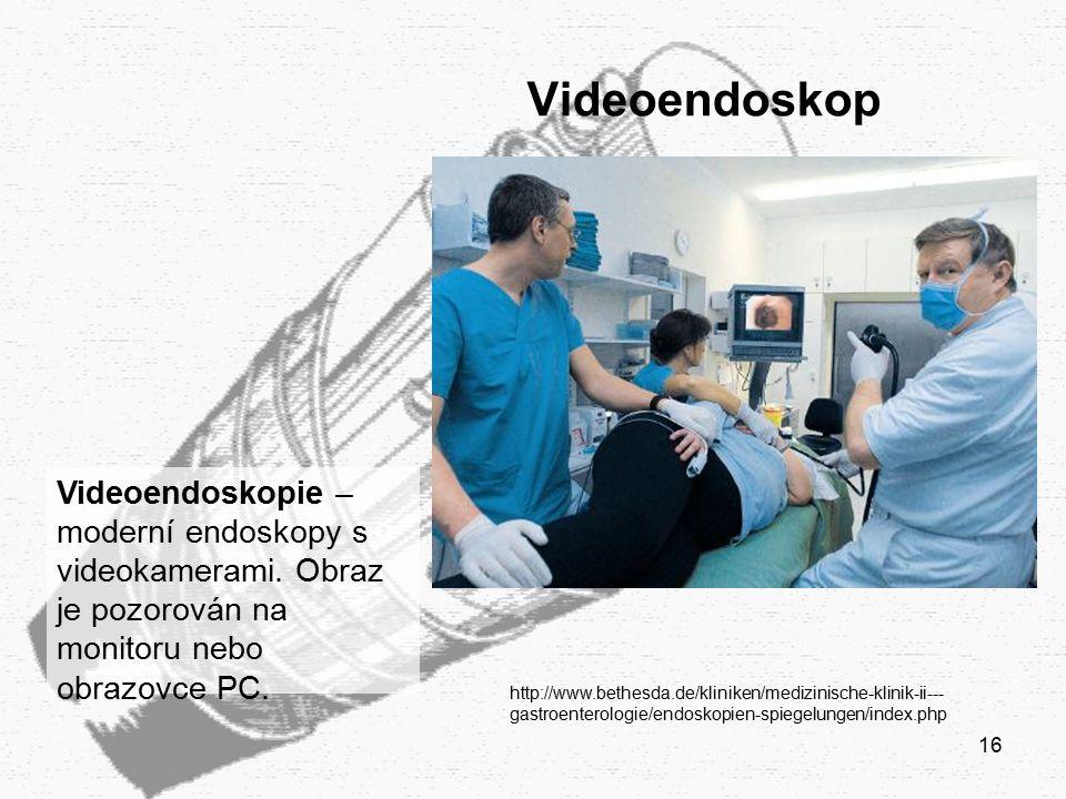 16 Videoendoskop http://www.bethesda.de/kliniken/medizinische-klinik-ii--- gastroenterologie/endoskopien-spiegelungen/index.php Videoendoskopie – mode