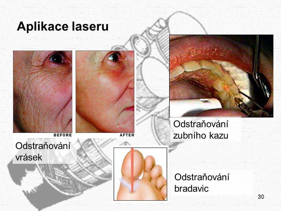 30 Aplikace laseru Odstraňování zubního kazu Odstraňování vrásek Odstraňování bradavic