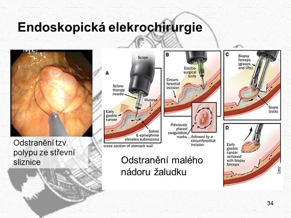 34 Endoskopická elekrochirurgie Odstranění tzv. polypu ze střevní sliznice Odstranění malého nádoru žaludku