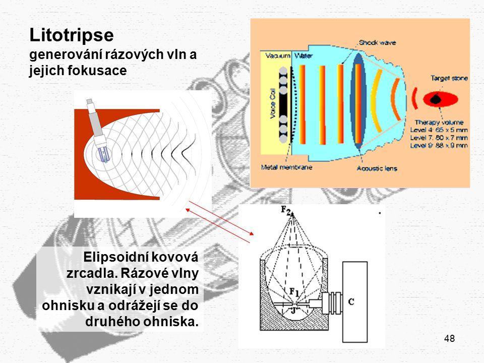 48 Litotripse generování rázových vln a jejich fokusace Elipsoidní kovová zrcadla. Rázové vlny vznikají v jednom ohnisku a odrážejí se do druhého ohni