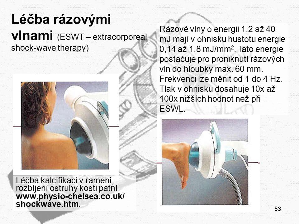 53 Léčba rázovými vlnami (ESWT – extracorporeal shock-wave therapy) Léčba kalcifikací v rameni, rozbíjení ostruhy kosti patní www.physio-chelsea.co.uk