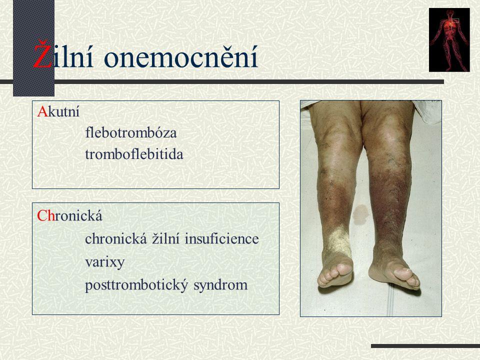 Žilní onemocnění Akutní flebotrombóza tromboflebitida Chronická chronická žilní insuficience varixy posttrombotický syndrom