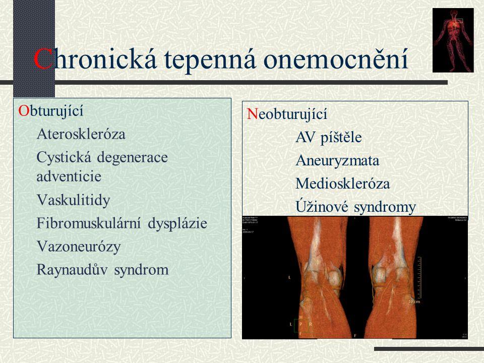 Chronická tepenná onemocnění Obturující Ateroskleróza Cystická degenerace adventicie Vaskulitidy Fibromuskulární dysplázie Vazoneurózy Raynaudův syndr