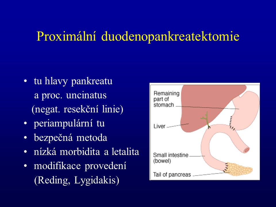 Proximální duodenopankreatektomie tu hlavy pankreatu a proc. uncinatus (negat. resekční linie) periampulární tu bezpečná metoda nízká morbidita a leta