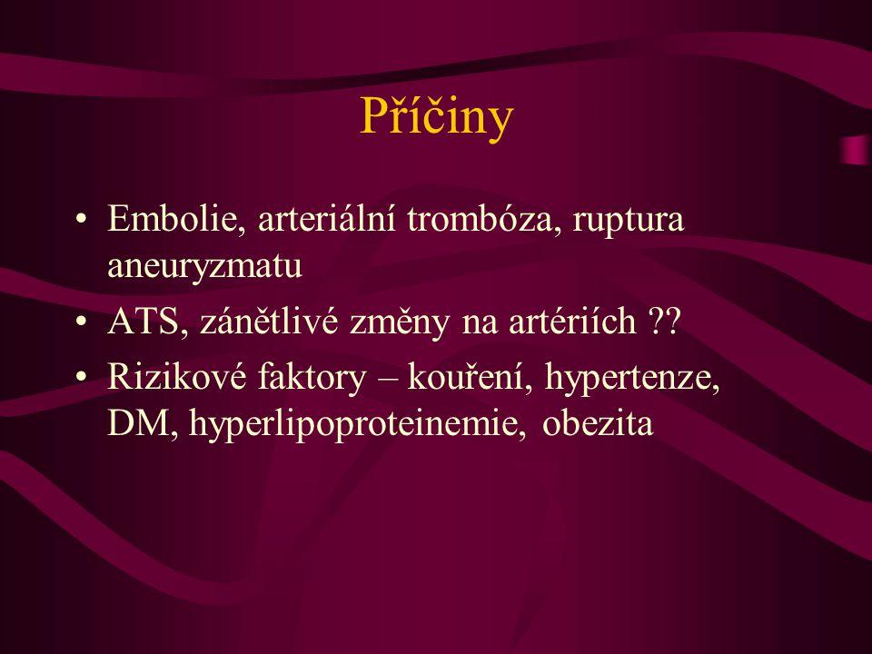 Příčiny Embolie, arteriální trombóza, ruptura aneuryzmatu ATS, zánětlivé změny na artériích ?? Rizikové faktory – kouření, hypertenze, DM, hyperlipopr