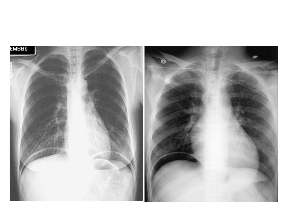 Nádrory žaludku - terapie CHIRURGICKÁ léčba – resekce žaludku, popřípadě gastro-entero-anastomóza Adjuvantní chemoterapie