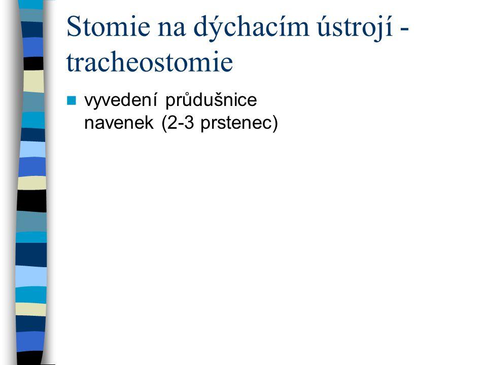Stomie na dýchacím ústrojí - tracheostomie vyvedení průdušnice navenek (2-3 prstenec)