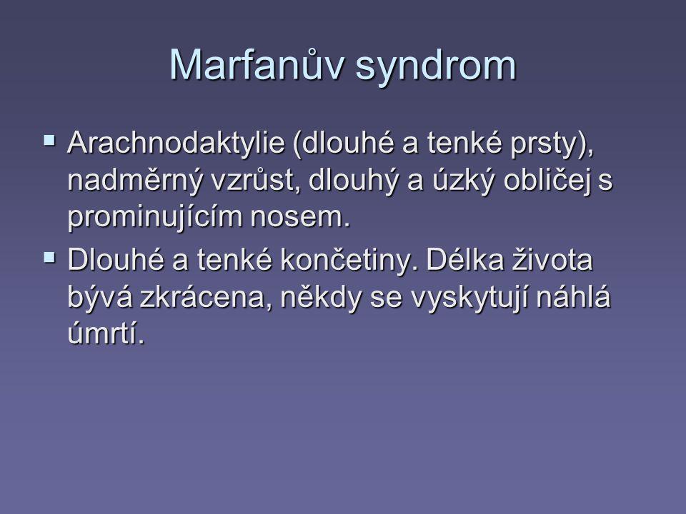 Marfanův syndrom  Arachnodaktylie (dlouhé a tenké prsty), nadměrný vzrůst, dlouhý a úzký obličej s prominujícím nosem.  Dlouhé a tenké končetiny. Dé