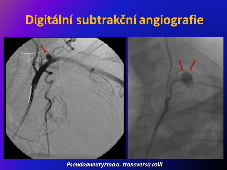 Digitální subtrakční angiografie Pseudoaneuryzma a. transversa colli
