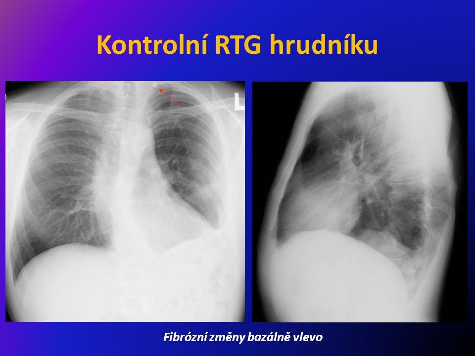 Kontrolní RTG hrudníku Fibrózní změny bazálně vlevo