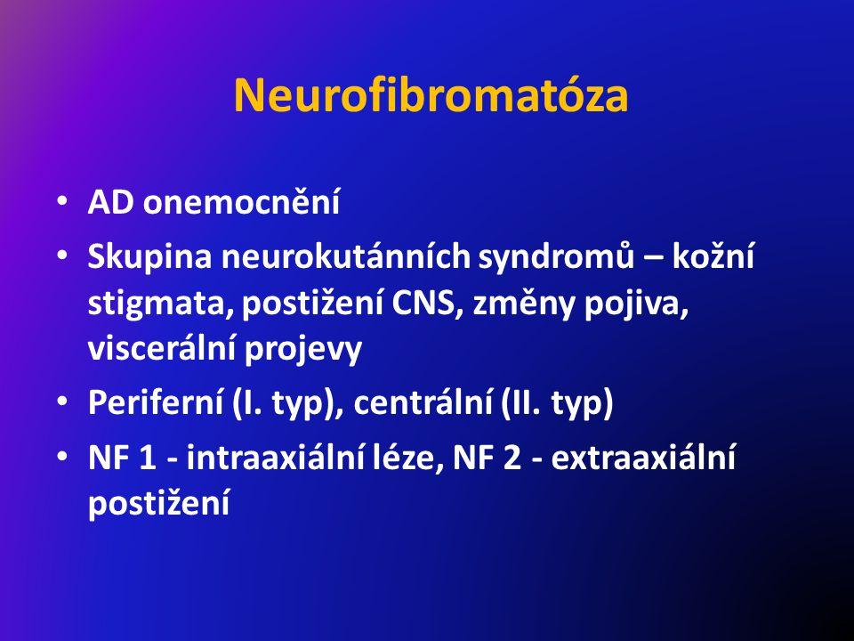 Neurofibromatóza AD onemocnění Skupina neurokutánních syndromů – kožní stigmata, postižení CNS, změny pojiva, viscerální projevy Periferní (I.