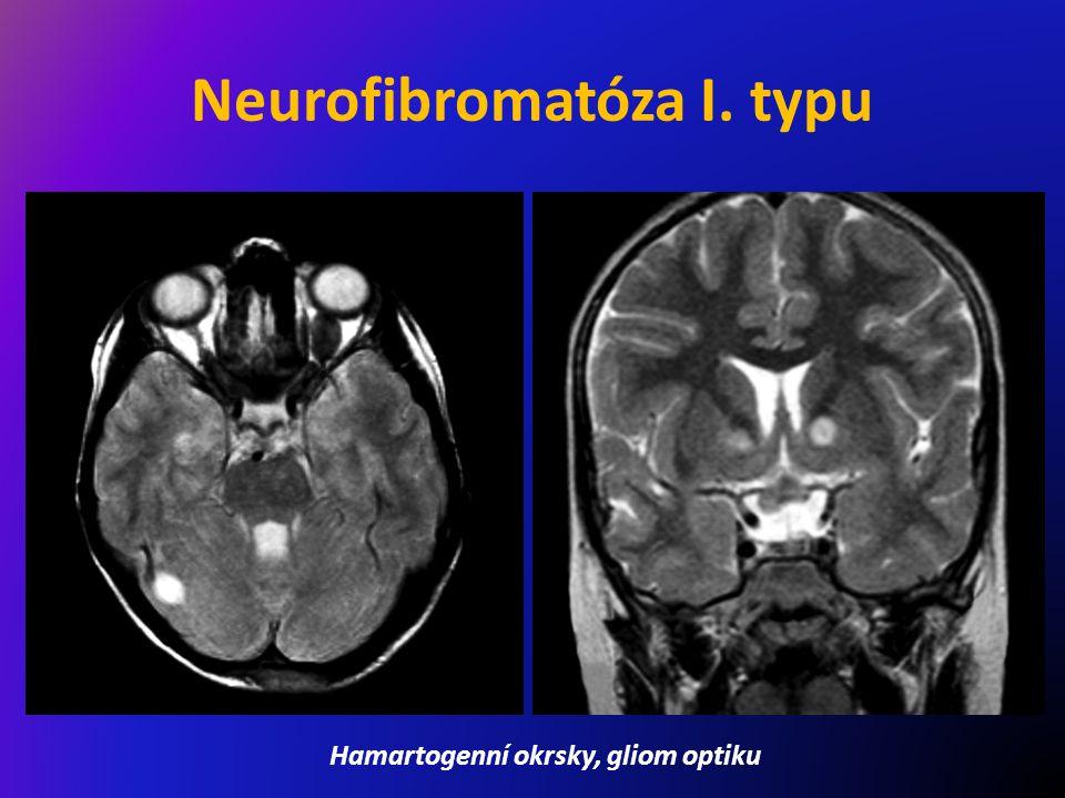 Neurofibromatóza I. typu Hamartogenní okrsky, gliom optiku